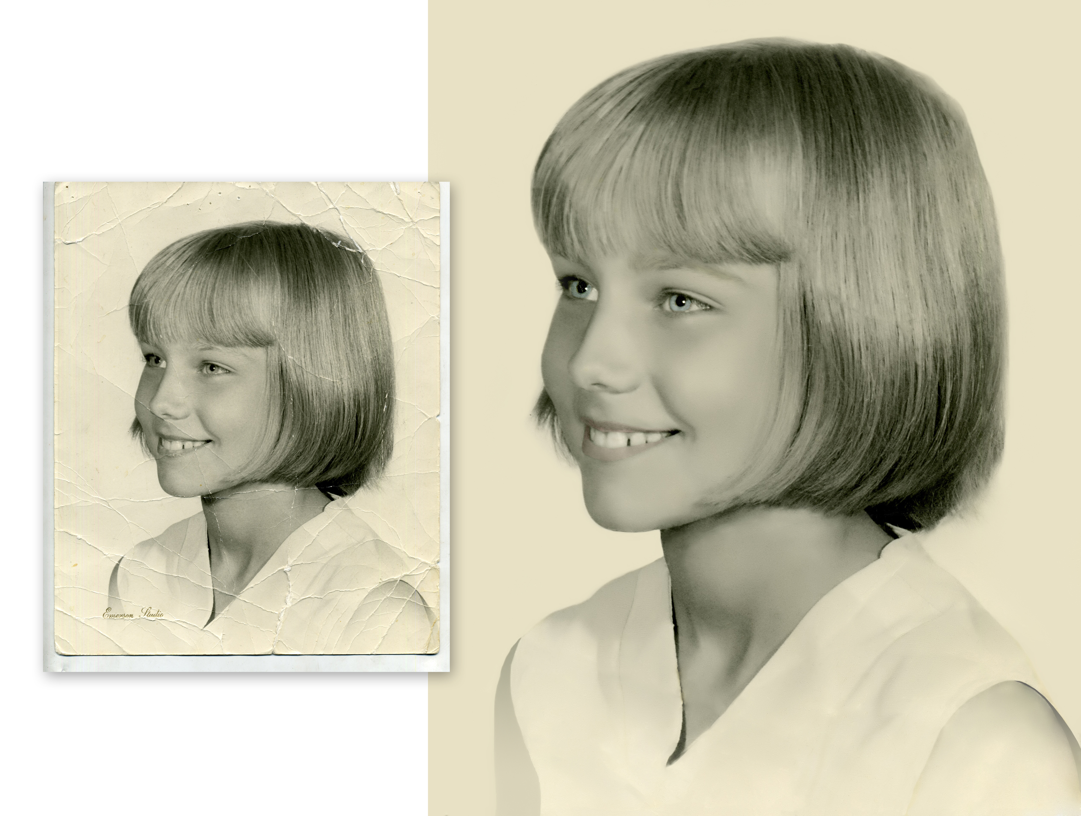 Kristin Benson before n after